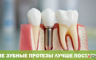 Из каких материалов делают зубные протезы, их характеристики, что лучше?