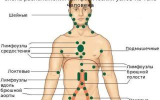 Узелки на коже и под кожей — на лице, на теле, на животе, на руках