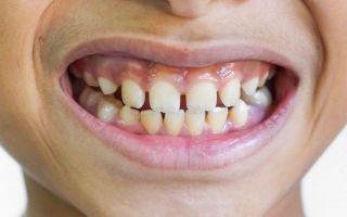 Примета — щербинка между зубами: что означает щель между передними зубами