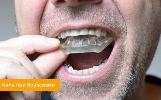 Шатаются зубы у взрослого — что делать с коренными и передними