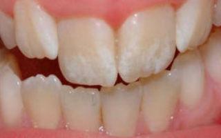 Кариес на передних зубах: лечение изнутри — как лечат и как выглядит, что делать