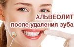 Удаление зуба мудрости: что делать после удаления будет нельзя, рекомендации, фото внизу, восстановление, процедуры реабилитации