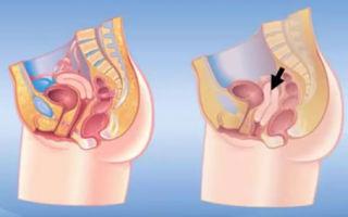 Упражнения при опущении органов: самые эффективные комплексы