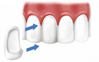 Сколько стоит нарастить зуб (передний, жевательный) — кусочек, половину или целый