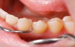 Можно ли удалять 2 зуба одновременно за одно посещение?