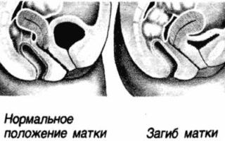 Ретрофлексия матки — причины, признаки, симптомы и лечение