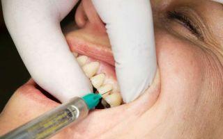 Что сделать, чтобы заморозка зуба прошла быстрее, как снять анестезию