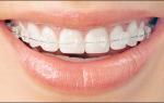 Брекеты вестибулярные, керамические, металлические в стоматологии подольска