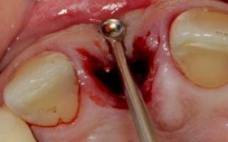 Сухая лунка зуба после удаления, симптомы, признаки, меры профилактики, лечение