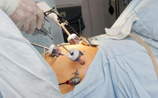 Перекрут яичника у женщин: симптомы на узи и лечение