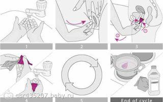 Менструальная чашечка: как пользоваться, как выглядит (фото)