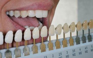 Правила использования шкалы вита при определении цвета зубов