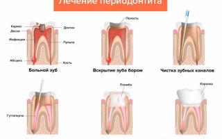 Кариес запущенный: последствия и лечение зуба, что делать, если уже сильный и большой очаг поражения