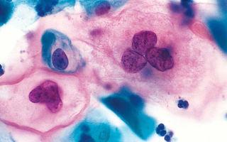 Клетки цилиндрического эпителия в мазке на цитологию