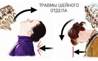 Почему болит шея спереди под подбородком и что с этим делать?