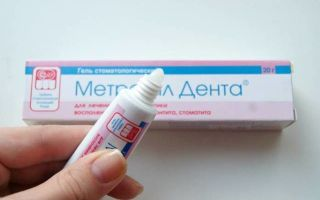 Чем полоскать рот, если воспалилась десна, средства для полоскания при воспалении, болезнях