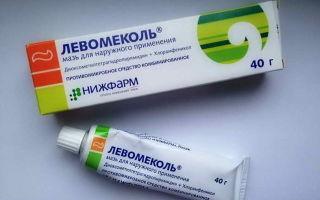 Флюс зубной: быстро снять опухоль помогут медикаменты и народные средства