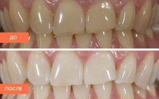 Ультразвуковая чистка зубов: противопоказания абсолютные и относительные