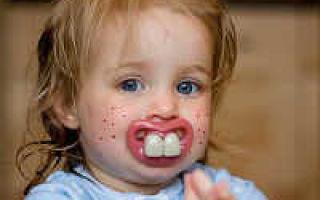 Сыпь при прорезывании зубов у детей — причины возникновения