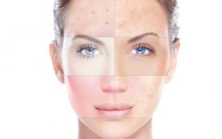 Химический пилинг для лица: что это такое, вреден ли, когда и как часто можно делать