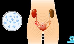 Белые творожистые выделения без запаха с зудом у женщин: причины появления и возможные заболевания