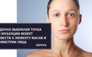 Инъекции ботокса для губ и от морщин на лице — в чем особенности ботокса и его аналогов