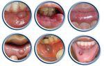 Шишка на губе с внутренней стороны во рту — лечение и диагностика