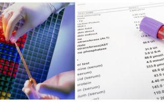 Инвазивный рак шейки матки: причины, симптомы, проведение диагностики и лечение