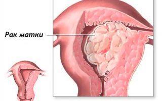 Рак тела матки — симптомы,диагностика и лечение опухоли тела матки на разных стадиях