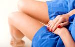 Уретрит у женщин: почему он возникает и как его лечить, способы профилактики уретрита