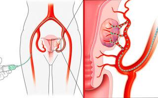 Эмболизация маточных артерий при миоме матки — что это и как лечат?