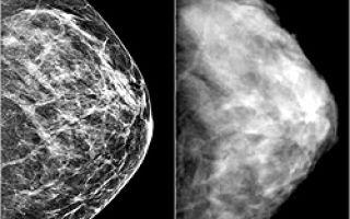 Какие существуют ограничения при диагнозе мастопатия в 2020 году