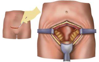Параовариальная киста, ретенционная киста, эндометриоидная и киста яичника — виды кист и беременность