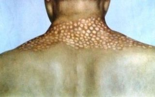 Первичный сифилис – возбудитель, пути заражения, первые признаки сифилиса у мужчин и женщин, профилактика