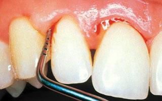 Что делать если застудил зуб — основные способы лечения