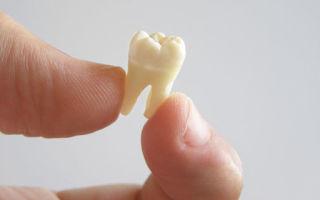 К чему снится выпадение зубов без крови у себя — точное толкование