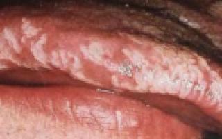 Болезни языка: причины воспалений, симптомы заболевания, изменение цвета на красный, синий, диагностика и лечение патологий
