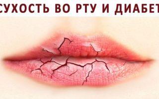 Заболевания полости рта, слизистой оболочки и языка у взрослых: фото, лечение