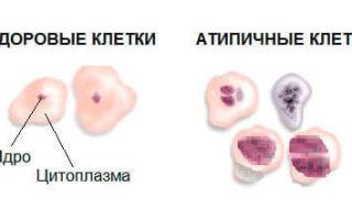 Атипия в гинекологии – что это такое, и какие нарушения могут возникать