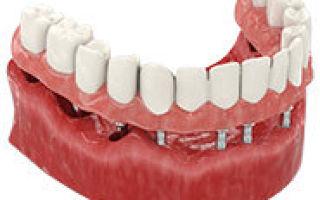 Чем опасно отсутствие зубов — вторичная и частичная адентия