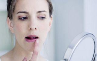 Сухость кожи вокруг рта: причины, лечение, как ухаживать, что делать, нужно ли к врачу, почему сушит кожу в области рта