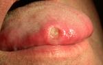 Рак языка: фото, первые симптомы и признаки, виды, причины, стадии, лечение, диагностика