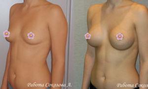 Эндоскопическое увеличение груди: как проводится и насколько безопасна такая маммопластика