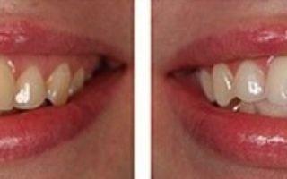 Ультразвуковая чистка зубов: плюсы и минусы процедуры, противопоказания