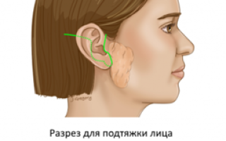 Удаление слюнной железы: жизнь после операции, последствия, реабилитационный период, гимнастика для лица