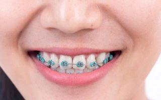 Репозиция уровня губы при лечении десневой улыбки: новый подход (2409) — хирургия — новости и статьи по стоматологии