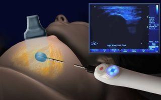 Эхогенность железистой ткани молочной железы повышена: что делать