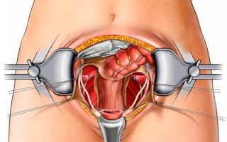Вторичное бесплодие у женщин — что это такое, причины и лечение