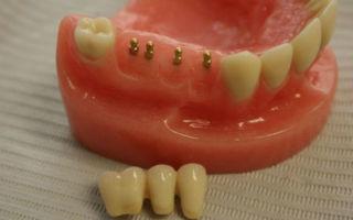Имплантация зубов — плюсы и минусы имплантов, мнение специалиста