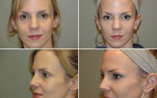 Массаж шиацу для лица: схема, техника, видео-обучение, королевские точки шиацу